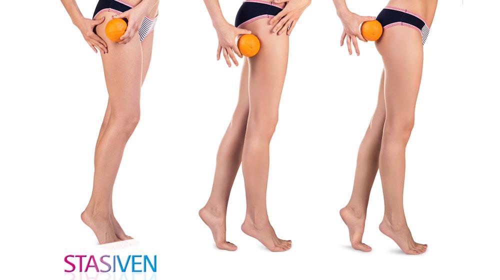 Gonfiori e cellulite: anche le gambe giovani soffrono